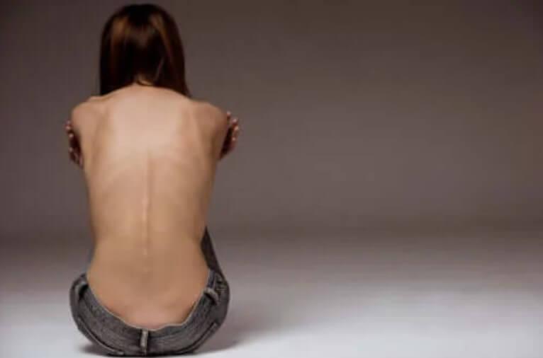 Σαδορεξία: Μια όλο και πιο συχνή διατροφική διαταραχή