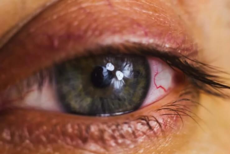 κόκκινο μάτι