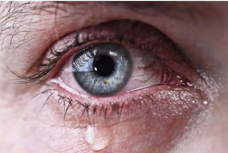 μάτια που δακρύζουν