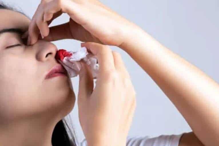 9 βασικές αιτίες για την αιμορραγία της μύτης