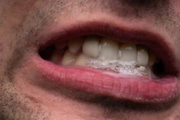 Έντονη σιελόρροια: Τα χαρακτηριστικά και η θεραπεία