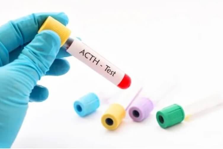 Κορτικοτροπίνη: Χαρακτηριστικά και αποτελέσματα