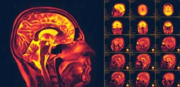 Τι είναι η νευροπλαστικότητα στον εγκέφαλο;