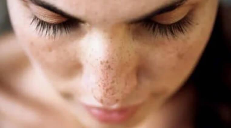 φακίδες στη μύτη