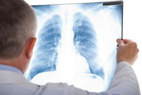 Γιατρός κοιτάζει μια ακτινογραφία