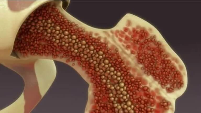 κύτταρα στα οστά
