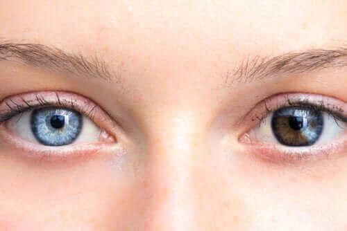 Οι αλλαγές στο χρώμα ματιών μπορεί να είναι ανησυχητικές
