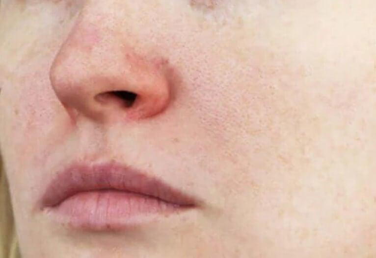 Ευρυαγγείες στο πρόσωπο: Χαρακτηριστικά και θεραπεία