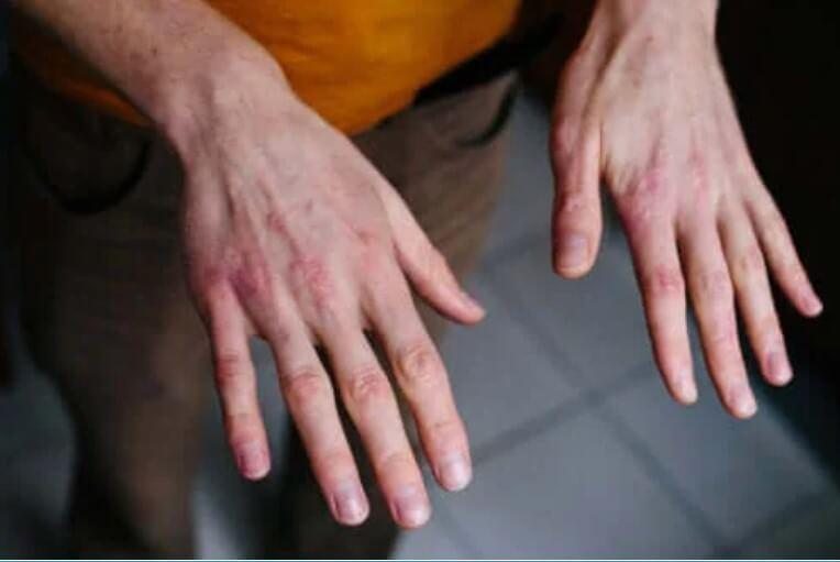 Ξηρά σκασμένα χέρια: Πώς να τα προστατεύσετε από το κρύο