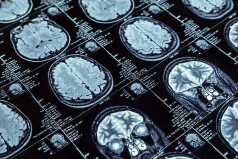 απεικόνιση εγκεφάλων