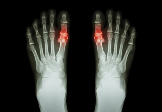 αρθρίτιδα στα πόδια