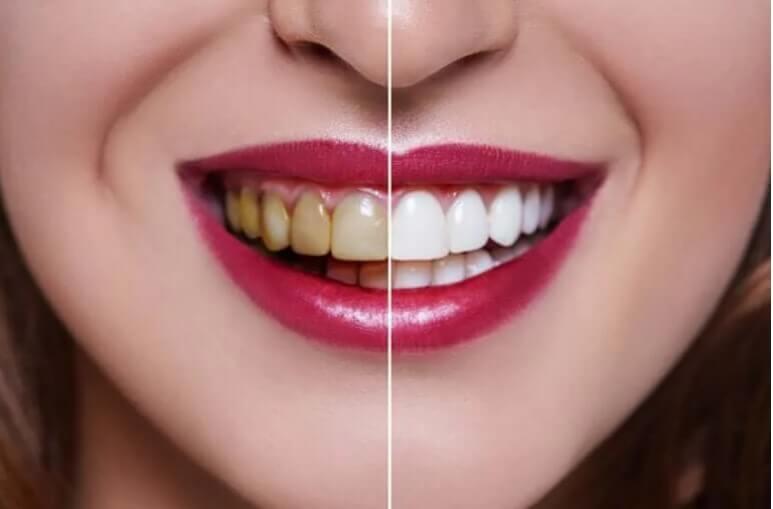 άσπρα και κίτρινα δόντια