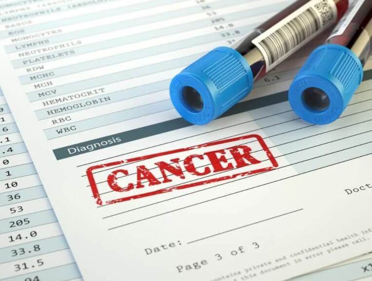 καρκίνος και εξετάσεις