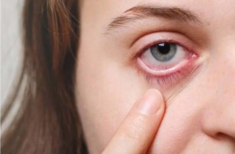 πόνος στο μάτι