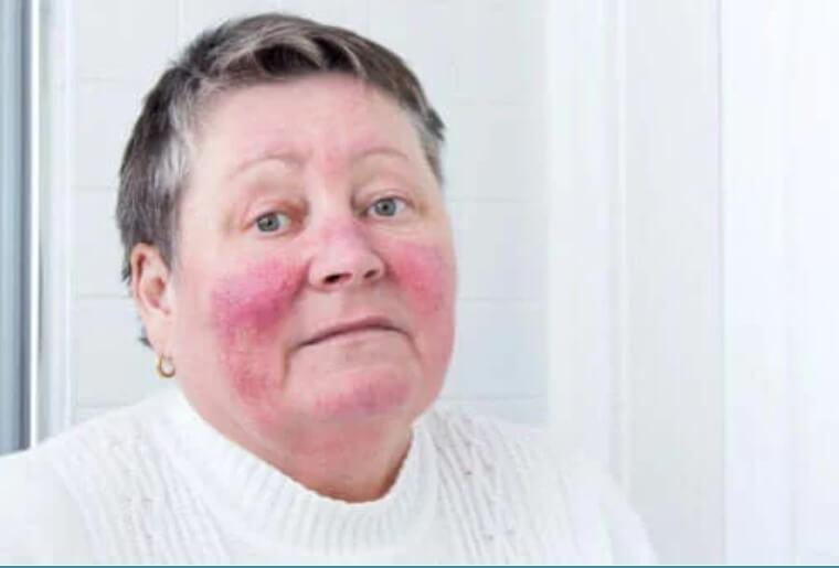 Ροδόχρους ακμή: Ποιες είναι οι αιτίες και τα συμπτώματα