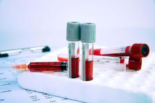 Διάφορα φιαλίδια με αίμα