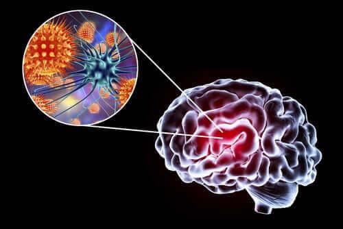 Εγκεφαλίτιδα: Συμπτώματα, αιτίες, και θεραπείες