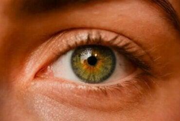 Οφθαλμικοί σπίλοι: Είναι επικίνδυνες οι φακίδες των ματιών;