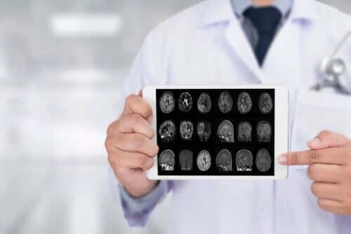Γιατρός δείχνει ακτινογραφίες εγκεφάλου σε ταμπλέτα