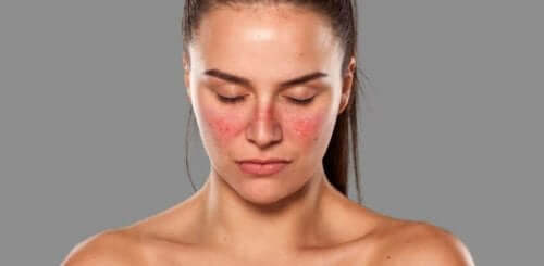 Γυναίκα με εξανθήματα στα μάγουλά της