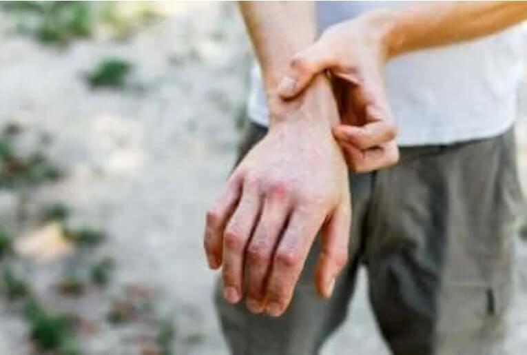 χέρια με φαγούρα