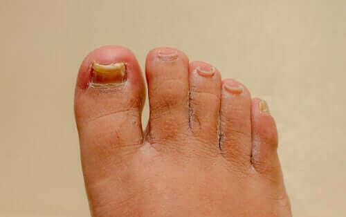 Ονυχομυκητίαση χεριών και ποδιών: Λειτουργούν οι φυσικές θεραπείες;