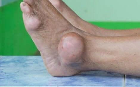 Πόδι πρησμένο εξαιτίας ουρικής αρθρίτιδας