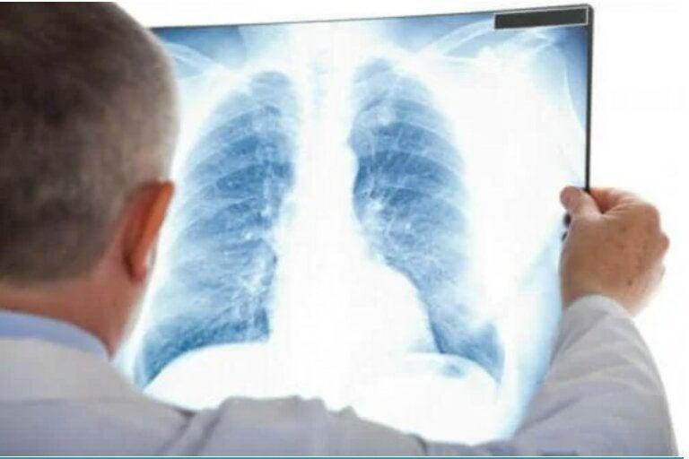 Άτυπη πνευμονία: Τι είναι και τι πρέπει να ξέρετε για αυτήν