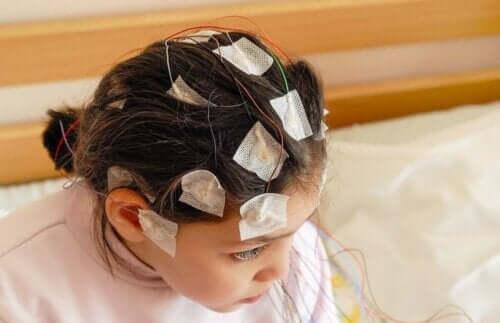 Κοριτσάκι με ηλεκτρόδια στο κεφάλι