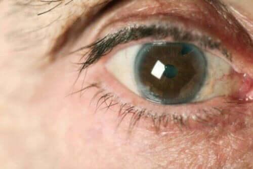 Μάτι με γλαύκωμα
