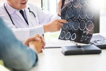 Νευρογλουτένη: Γλουτένη και νευρολογικές παθήσεις