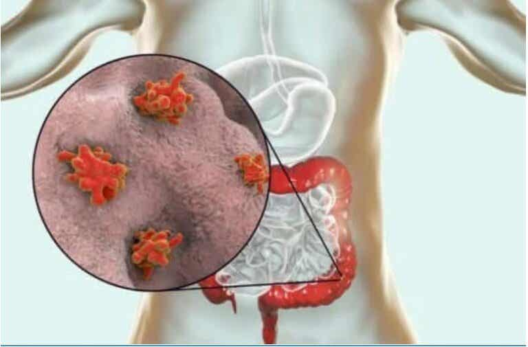 Ασθένειες που προκαλούνται από πρωτόζωα: Ποιες είναι;