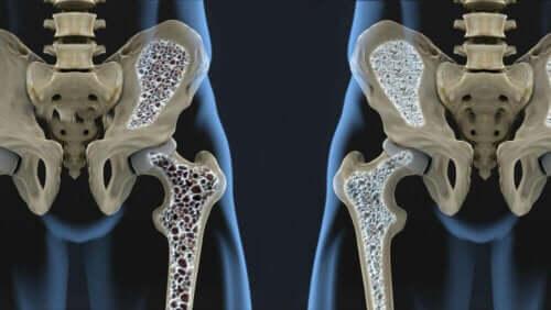 Σύγκριση πυκνότητας οστών