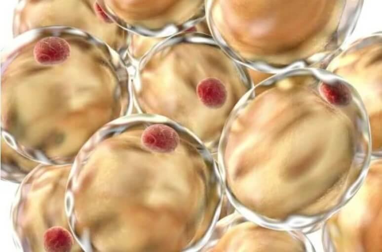 κύτταρα με λίπος