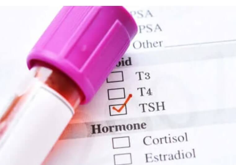 Χαμηλή ορμόνη διέγερσης του θυρεοειδή: Ποιες είναι οι αιτίες