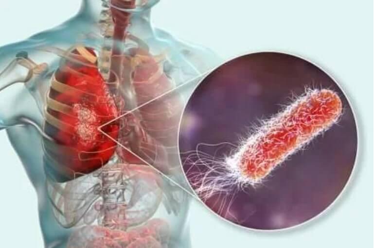 Υπάρχουν βακτήρια στους πνεύμονες; Κι αν ναι τι προκαλούν;