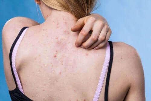 10 αιτίες και τύποι δερματικών εξανθημάτων