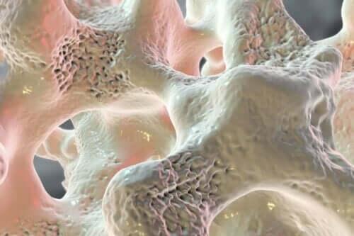 Απεικόνιση οστών με οστεοπόρωση