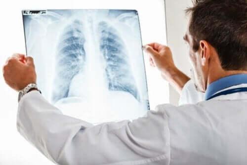 Γιατρός κοιτά ακτινογραφία θώρακα