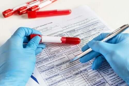 Γιατρός συμπληρώνει τα αποτελέσματα εξετάσεων αίματος