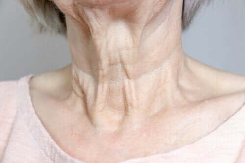 Ηλικιωμένη γυναίκα με ρυτίδες στον λαιμό- διάφορα είδη ρυτίδων