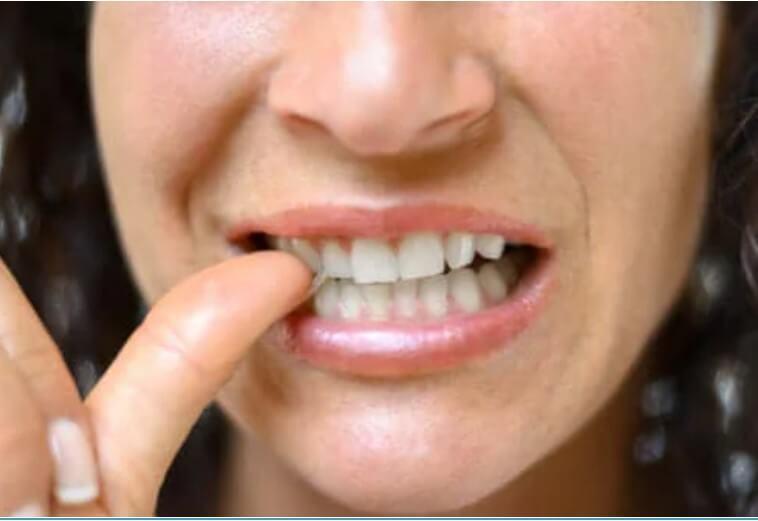 Παρωνυχία: Τι είναι, χαρακτηριστικά και θεραπείες