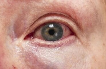Ραγοειδίτιδα: Ποια είναι η διάγνωση και ποια η θεραπεία της