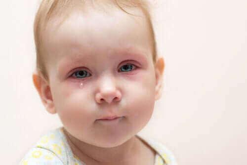 Επιπεφυκίτιδα στα παιδιά: Τι πρέπει να κάνετε