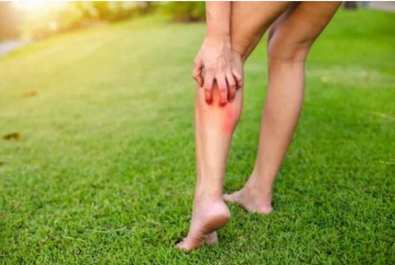 κνησμός στο πόδι