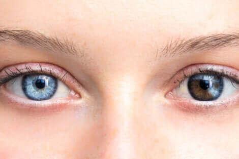 Γυναίκα με διαφορετικό χρώμα στα μάτια