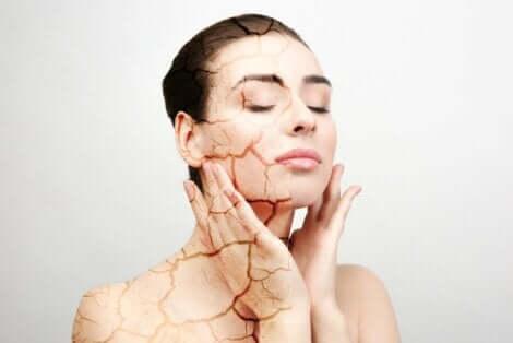 Γυναίκα με σκασμένο δέρμα