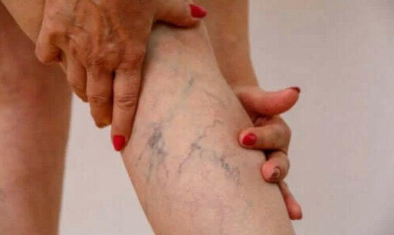 Φλεβίτιδα: Περιγραφή, συμπτώματα και θεραπεία