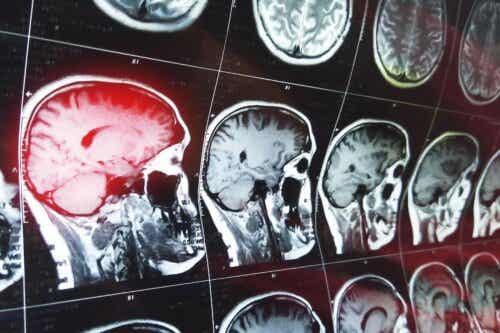 Ακτινογραφίες εγκεφάλου