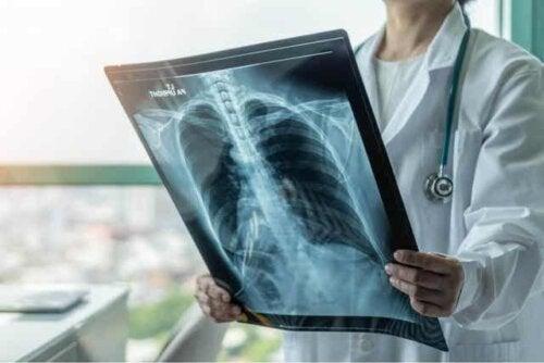 Γιατρός ελέγχει ακτινογραφία θώρακα